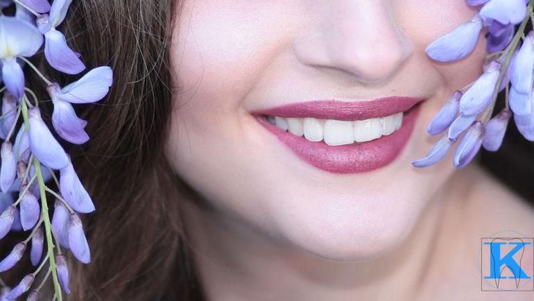 Wybielanie zębów w gabinetach stomatologicznych