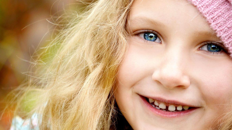 Diastema w oczach dentystów