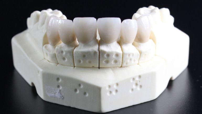 Jak dbać o implant zęba?