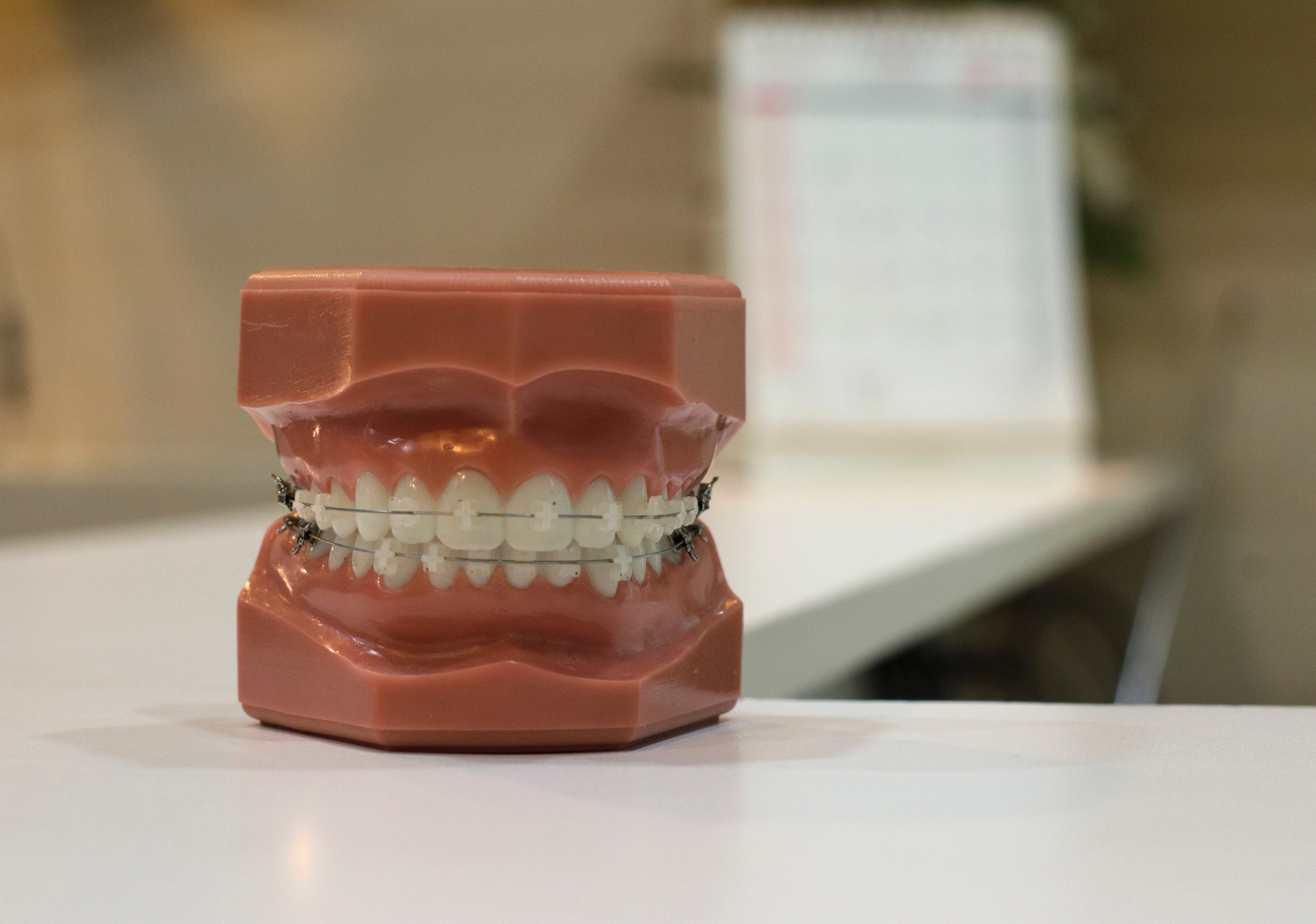 stłoczenia zębów