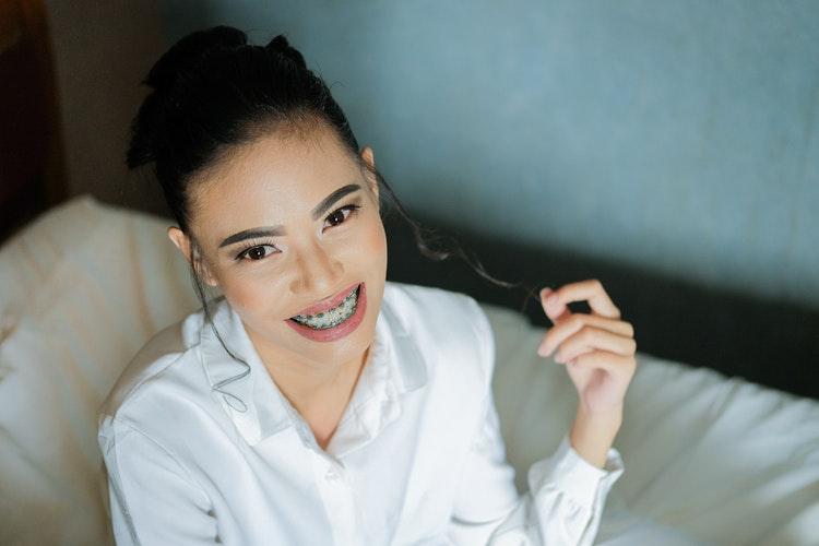 Aparat ortodontyczny – najczęstsze pytania