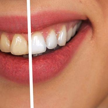 Sposoby na wybielanie zębów