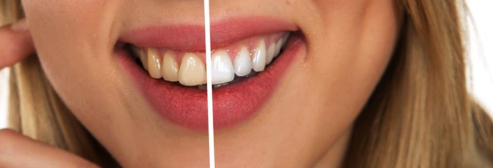 wybielanie-zębów.jpg